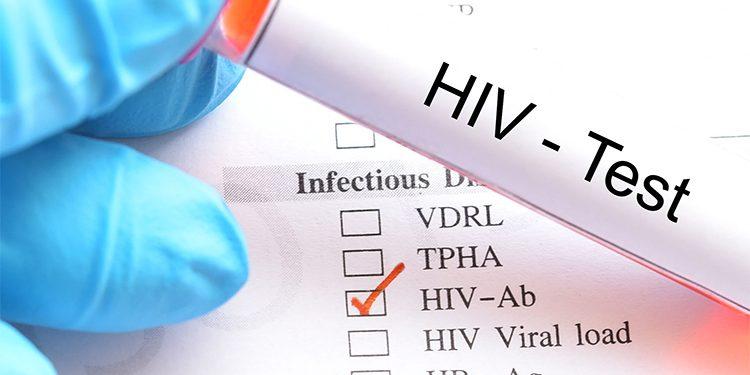 enfermedades sexuales analisis de sangre