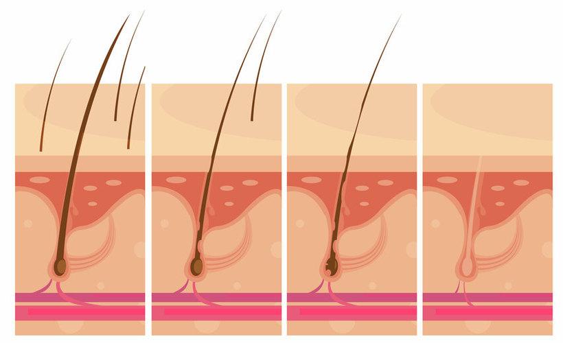 Especialistas en la prevención de la alopecia e implantes capilares en Tenerife